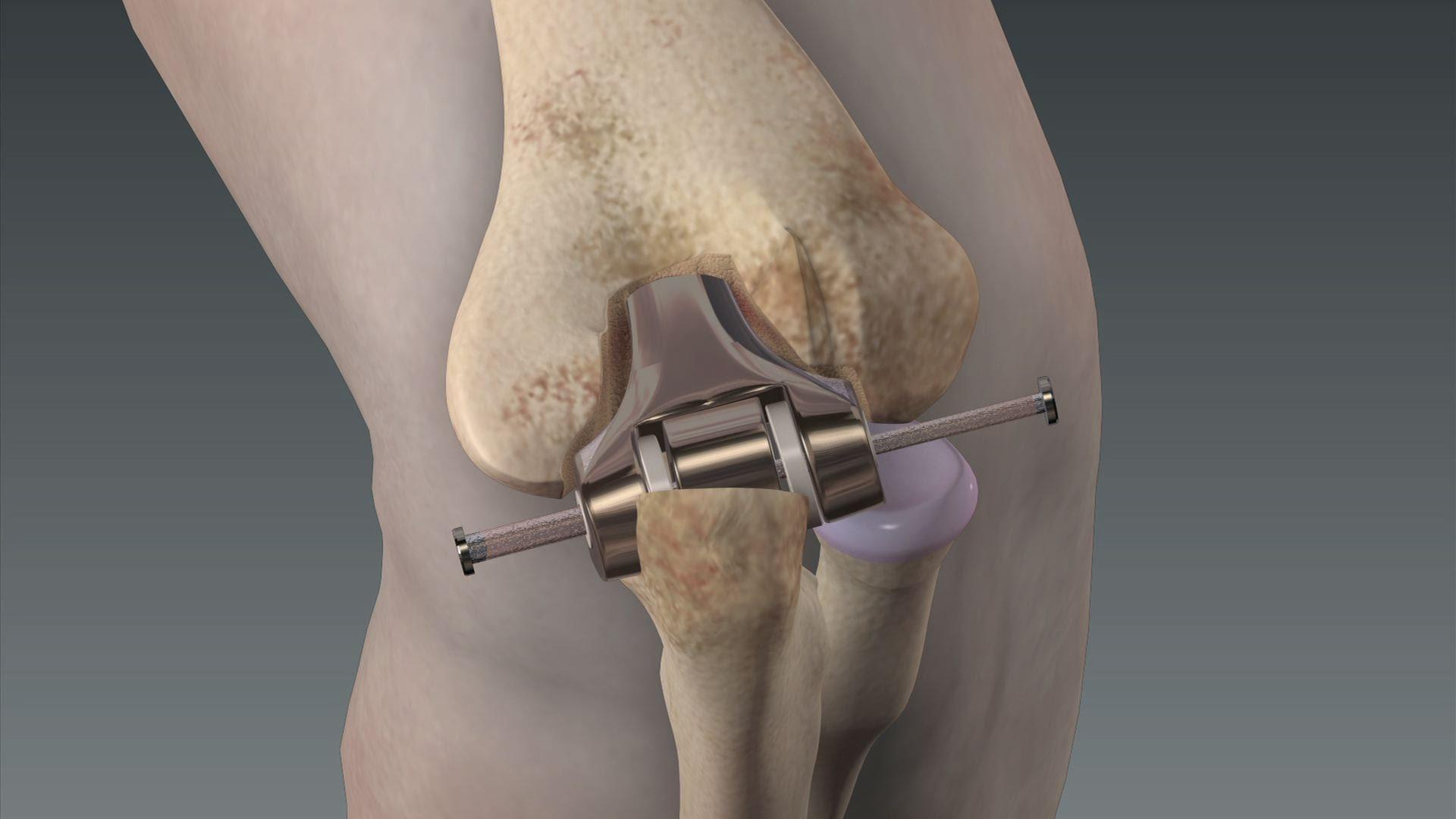 Сколько будет болеть нога после эндопротезирования коленного сустава болезни суставов у кур